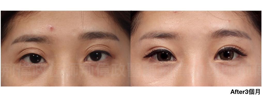 眼整形、提眼肌失敗、提眼肌ptt、提眼肌醫師、提眼肌台北.jpeg