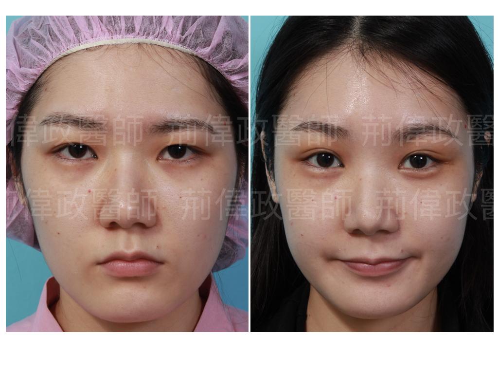 眼整形、眼整形權威、提眼瞼肌、眼瞼肌無力、眼整形推薦、割雙眼皮、割雙眼皮恢復期多久、台北有名整型診所推薦、雙眼皮ptt.jpeg