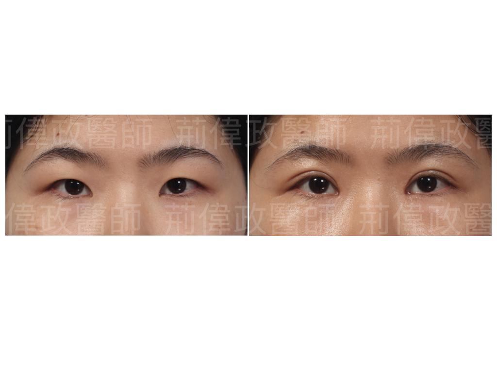 荊偉政醫師、極緻、眼整形權威、縫雙眼皮、割雙眼皮、台北雙眼皮手術推薦、訂書針雙眼皮、台北有名整型診所推薦、雙眼皮ptt.jpeg