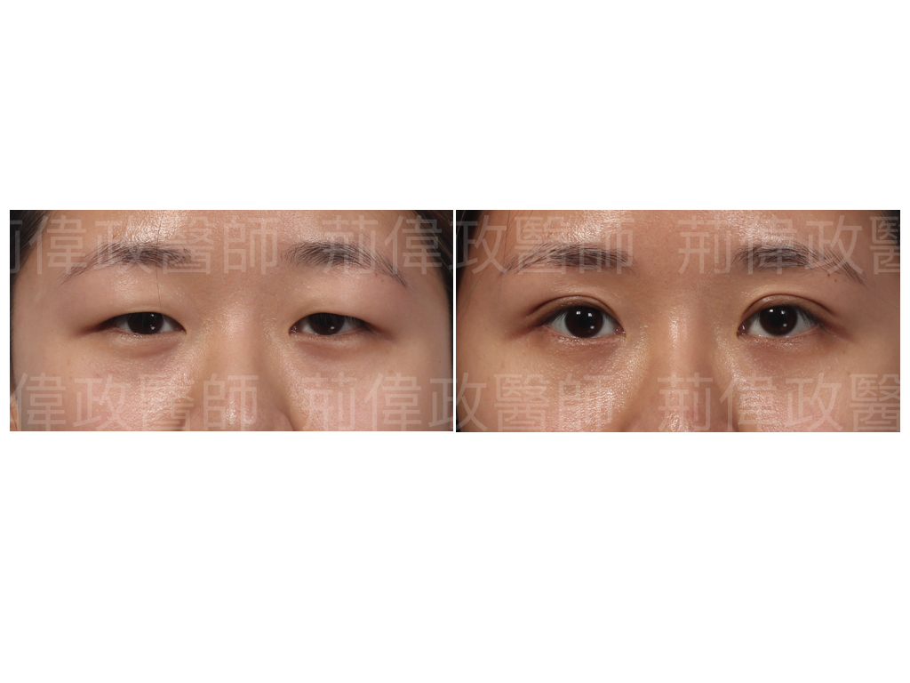 提眼瞼肌、眼瞼肌無力、眼整形推薦、眼整形外科、雙眼皮手術費用、提眼肌無力推薦、提眼肌失敗、提眼肌ptt.jpeg