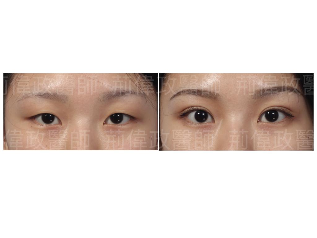 荊偉政醫師、極緻、眼整形權威、雙眼皮自然形成、雙眼皮單眼皮、縫雙眼皮、割雙眼皮、割雙眼皮推薦醫師、台北雙眼皮權威.jpeg