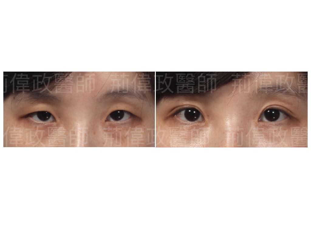 眼整形、眼整形權威、提眼瞼肌、眼瞼肌無力、眼整形推薦、台南割雙眼皮價錢、台中割雙眼皮價錢、提眼肌醫師、提眼肌台北.jpeg