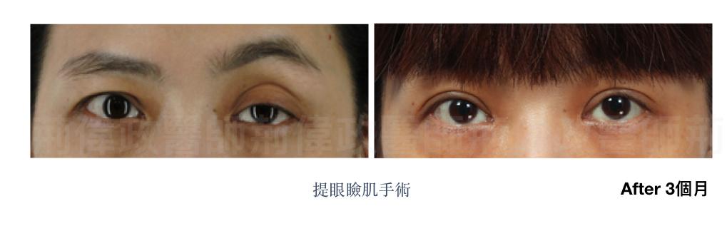 荊醫師、雙眼皮手術推薦、雙眼皮自然形成、雙眼皮單眼皮、縫雙眼皮.jpeg