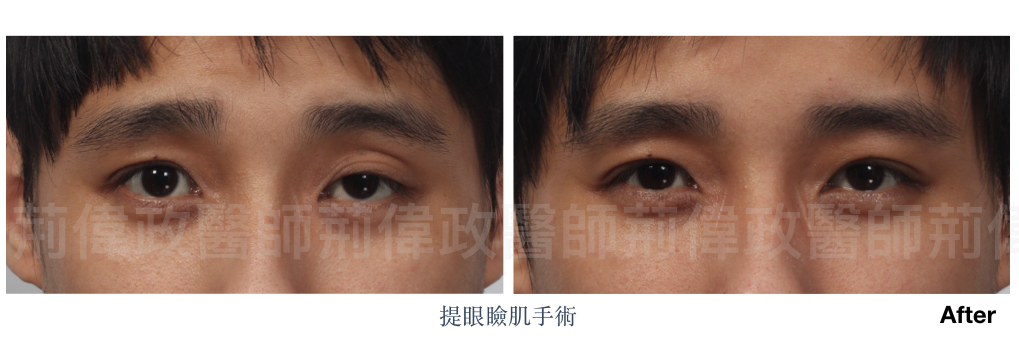 眼整形、台中割雙眼皮價錢、高雄割雙眼皮價錢、香港雙眼皮手術價錢、眼瞼肌無力訓練.jpeg
