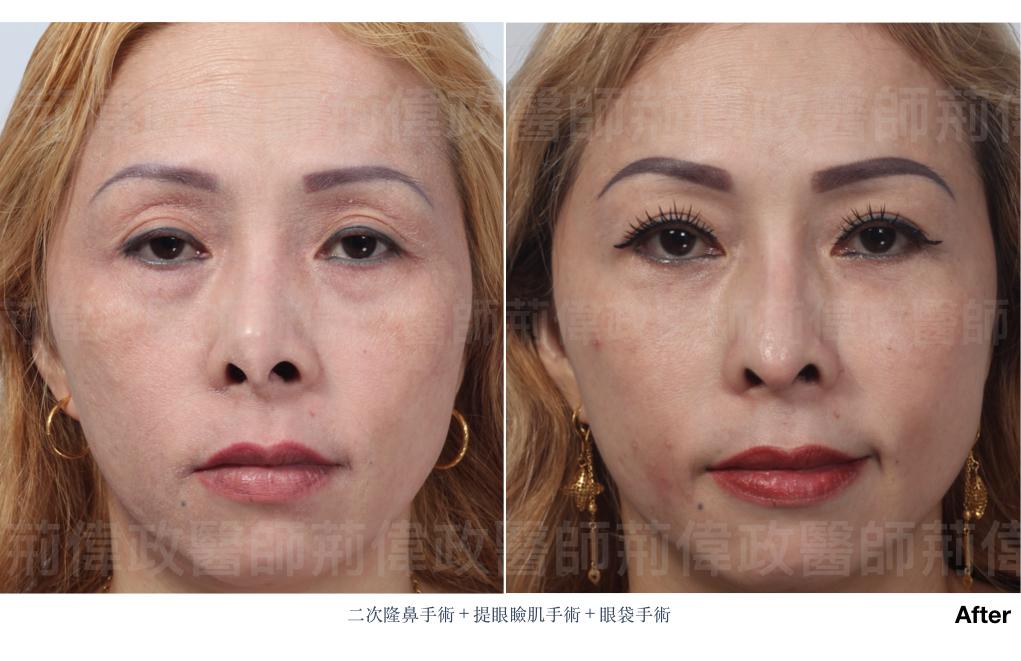 縫雙眼皮、提眼肌手術費用、提眼肌手術復原、提眼肌無力推薦、提眼肌失敗.jpeg