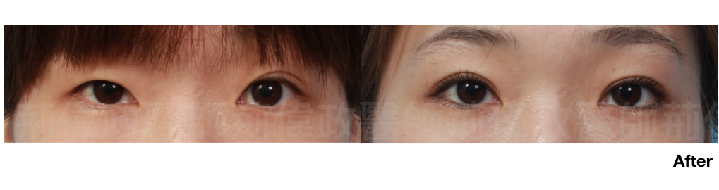 荊偉政醫師、極緻醫美、眼整形權威、提眼瞼肌、眼瞼肌無力.jpeg