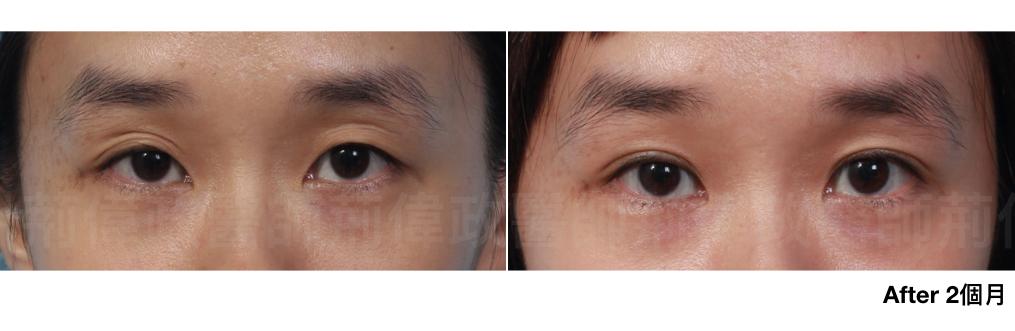 割雙眼皮、割雙眼皮恢復期多久、台北雙眼皮手術推薦、訂書針雙眼皮、割雙眼皮手術醫師推薦.jpeg