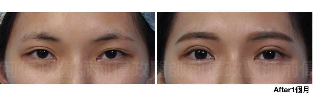 縫雙眼皮、眼整形外科、雙眼皮手術費用、雙眼皮手術推薦、雙眼皮自然形成.jpeg