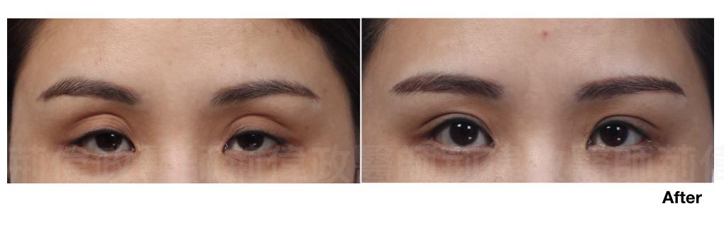 縫雙眼皮、提眼肌手術風險、提眼肌手術費用、提眼肌手術復原、提眼肌無力推薦.jpeg