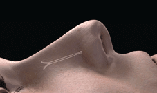 lateral-implant