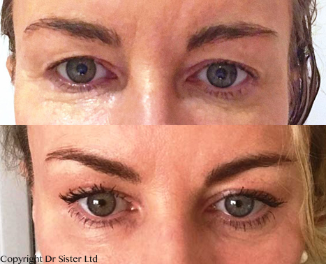 Plexr Plasma Soft Surgery For Blepharoplasty And Much More