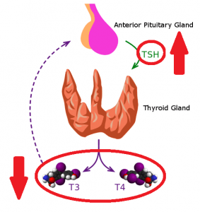 diagram showing hypothyroid state