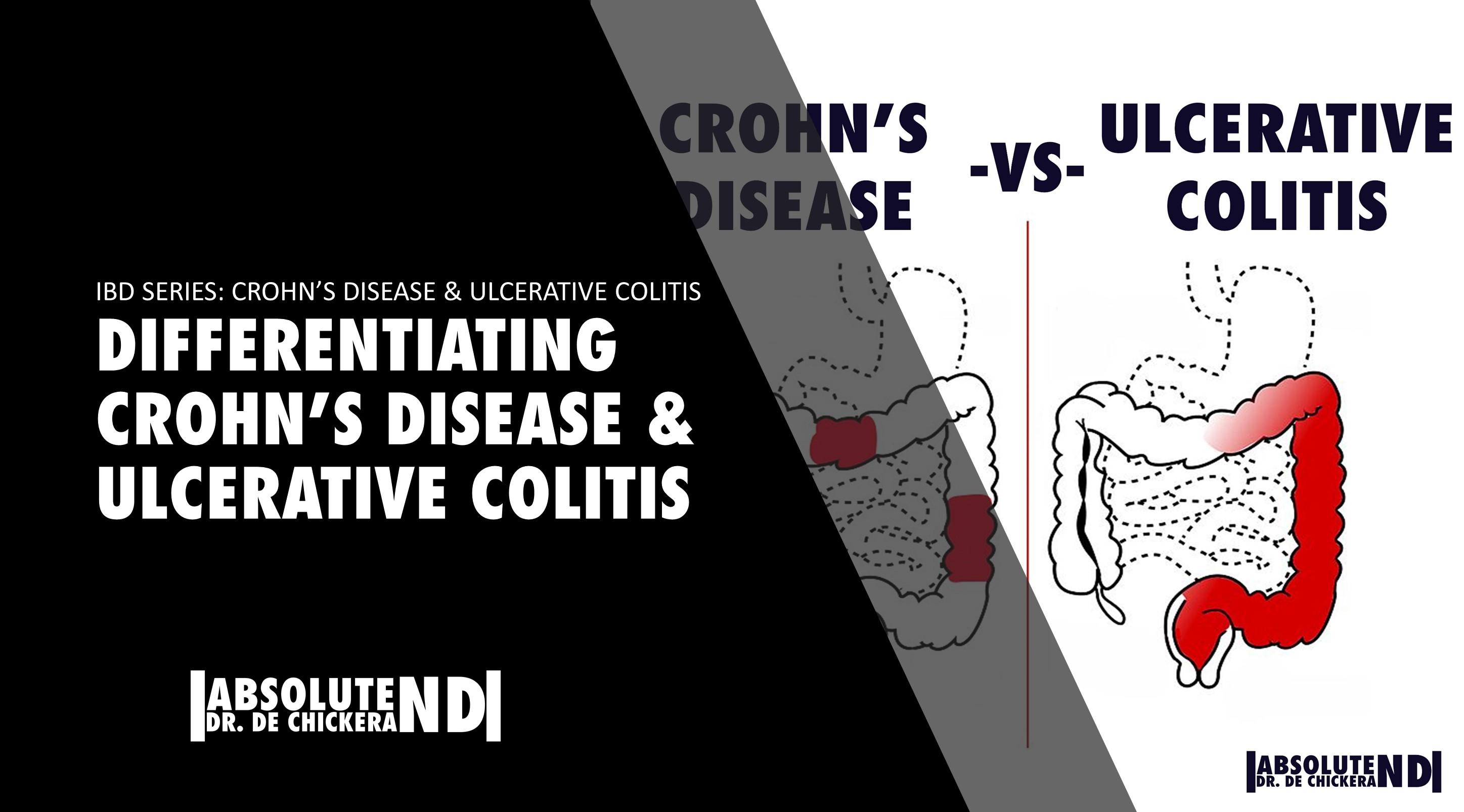 Autoimmune_IBD_CROHN'S AND COLITIS DIFFERENCES