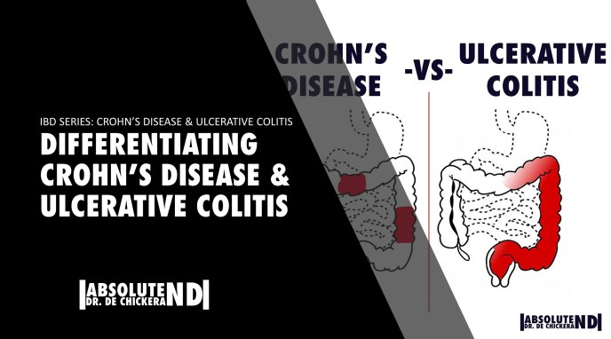 Differentiating IBD (CROHN'S AND COLITIS)