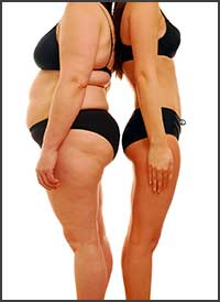 Liposuction-before-after-2 photo