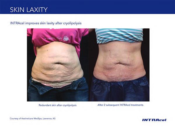 Skin laxity on tummy