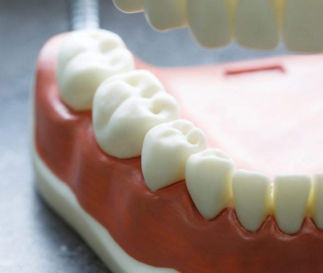 5 Ways To Prevent Cavities
