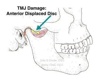 Damaged TMJ