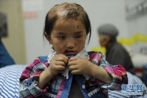 china-guizhou-little-girl-abused-by-father-burned-head-boiling-water-b-600x399