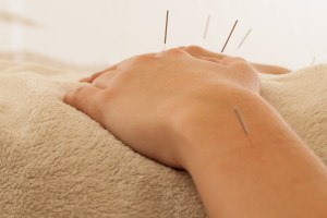 acupuncture seattle