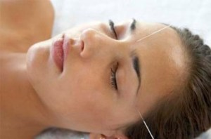 headache-portland-maine-acupuncture