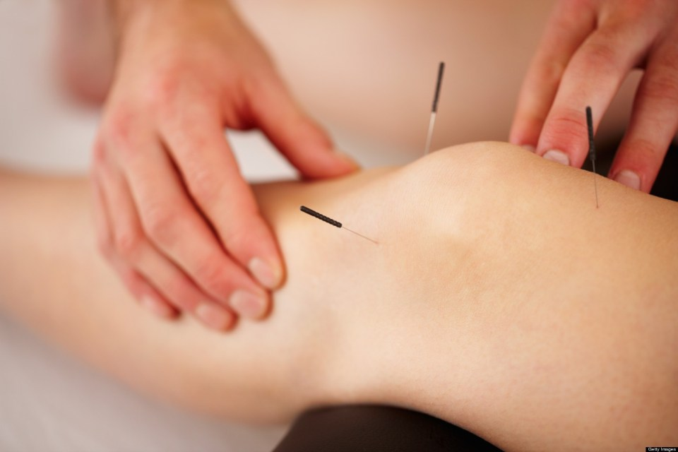 dreamclinic acupuncture seattle