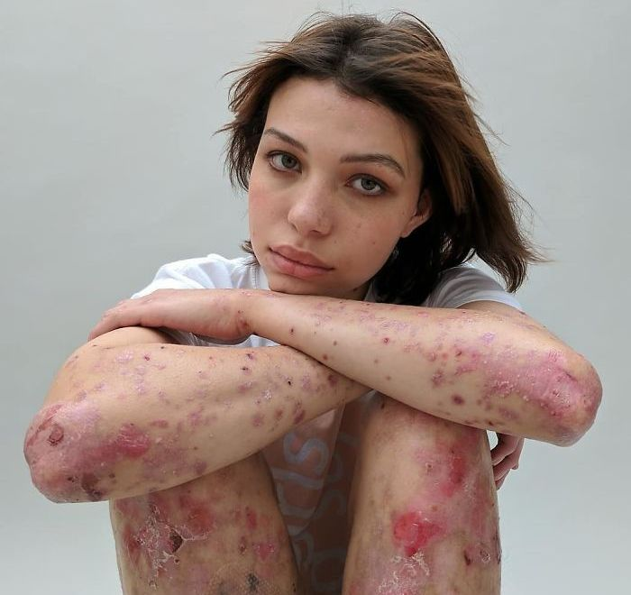 Behind The Scars: A Photography Project Of Every Scar's Story
