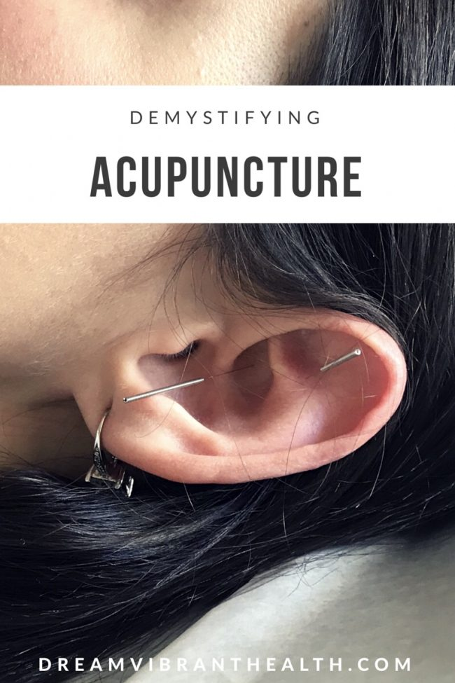 Straight from the source: Demystifying acupuncture