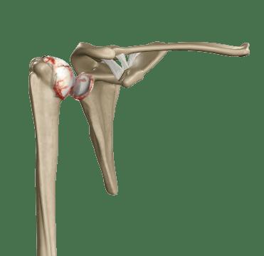 Shoulder replacement- arthritis