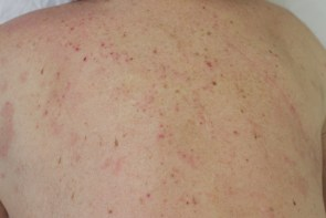 Psoriasis of the back, after only 2 weeks of treatment.