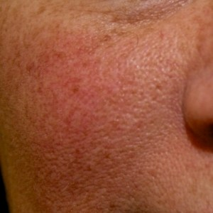 red flushing on a woman's cheeks which is typical of rosacea