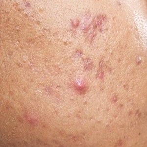 cystic acne before Chinese Medicine treatment