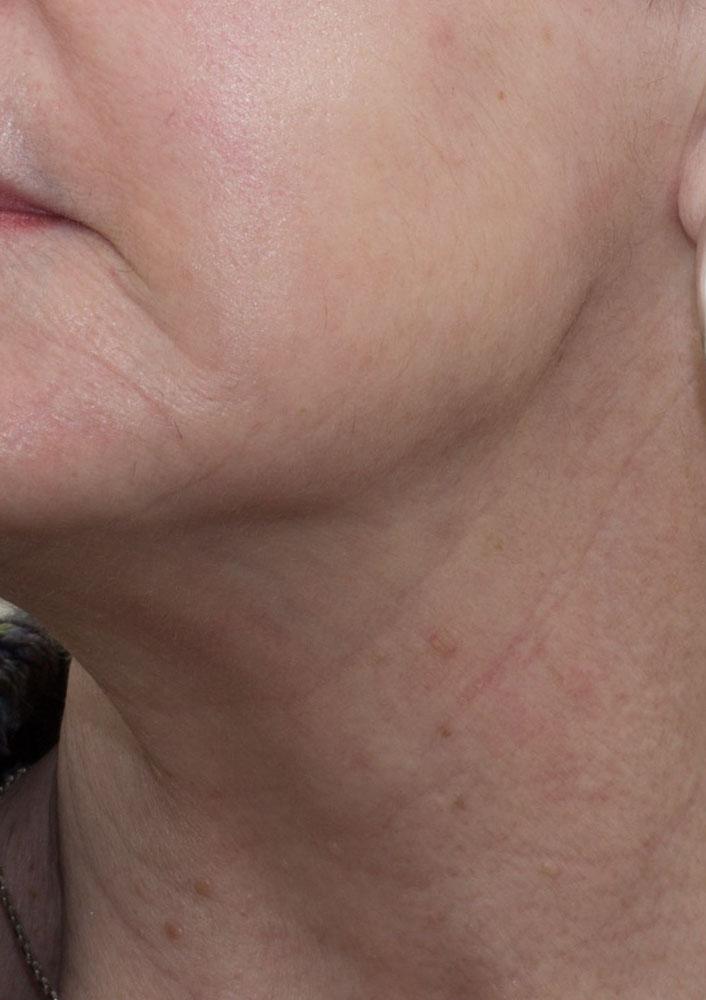 Eczema - after
