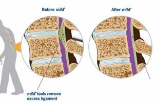 Minimally invasive lumbar decompression