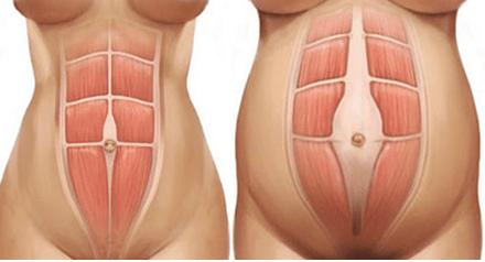 Diastasi addominale: sintomi, diagnosi, rimedi