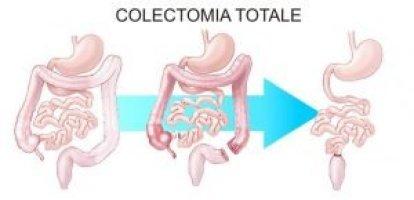 dolicocolon chirurgia