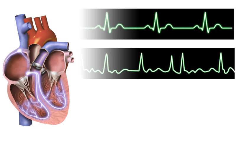 Atrijalna fibrilacija - treperenje pretkomora