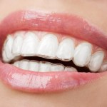No braces Invisalign East Cobb Marietta Dentist