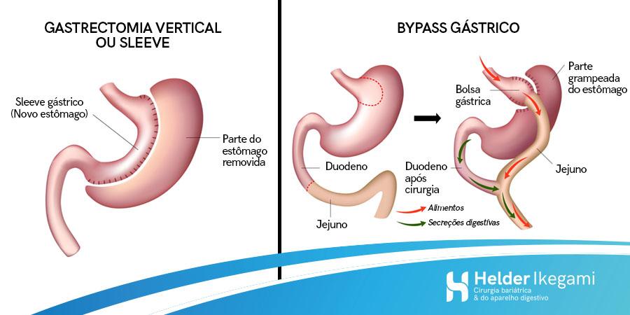 As diferenças entre as técnicas de cirurgia bariátrica
