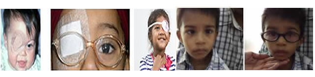 EXPERT PEDIATRIC VISION CARE FROM SIMPLE TO THE SERIOUS