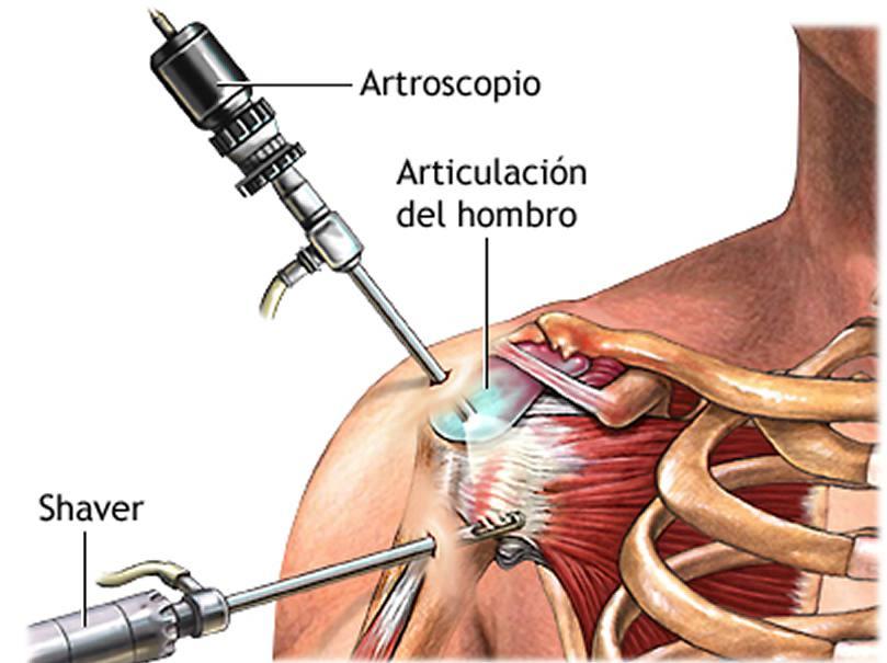 Artroscopia de hombro – Dr. Javier Severiche – Especialista en ...