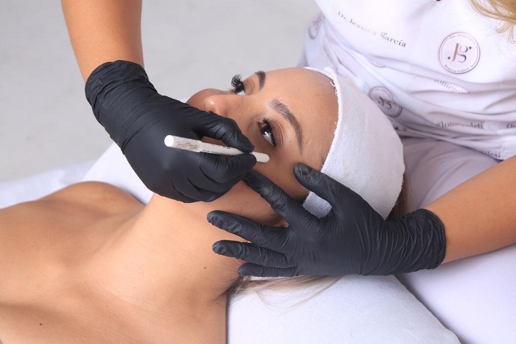 Blefaroplastia No Quirúrgica con Plaxpot