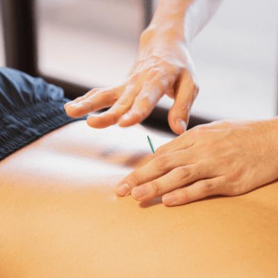 Acupuncture Treatment in Alpharetta GA
