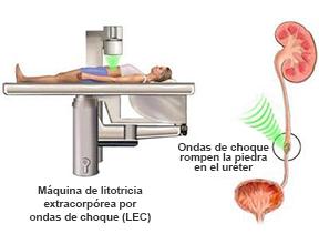 El procedimiento ESWL