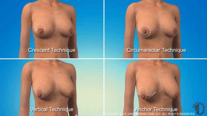 breast lifts