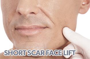 short scar