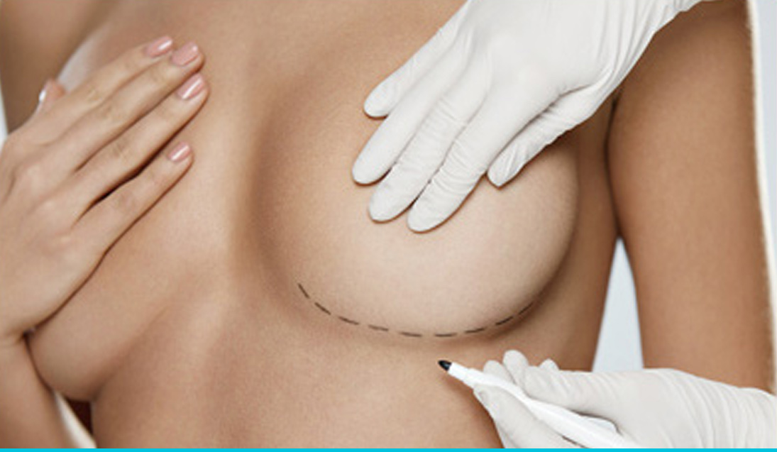 slider breast procedure