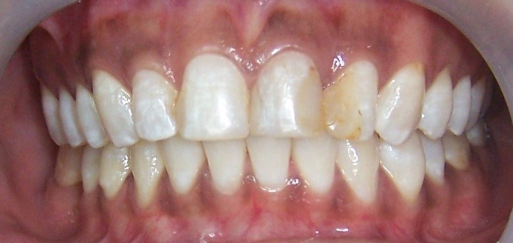 The severe discoloration and mottling was particularly noticeable on the front two left teeth. Large cavities on the sides of the the other teeth on the right.