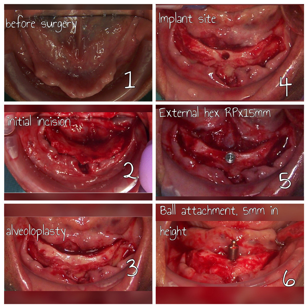Alveoloplasty , implant placement and ball attachment overdenture.