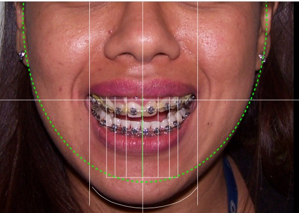Using DSD in Orthodontics